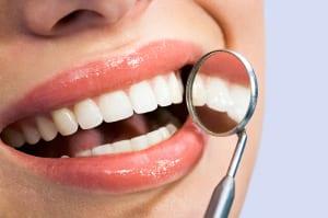 Veneers at Mercer Dental Care